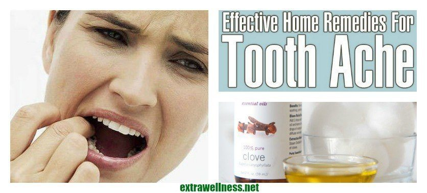how to help a toothache while pregnant