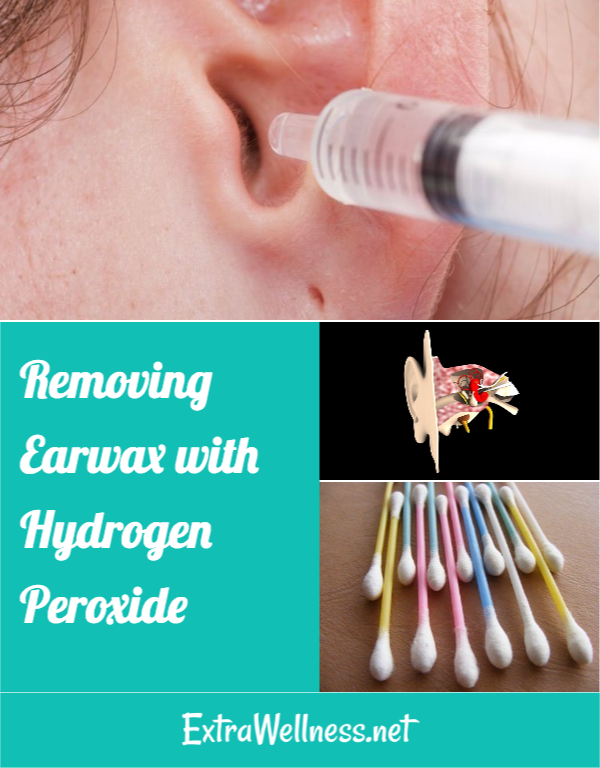 Removing Excessive Earwax With Hydrogen Peroxide