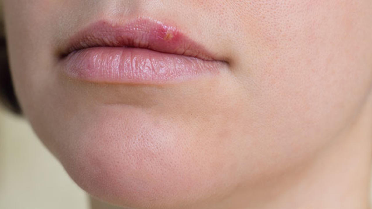 Natural cure for herpes have removed